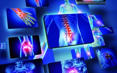 Arthrose : deux fois plus de cas aujourd'hui qu'il y a 50 ans