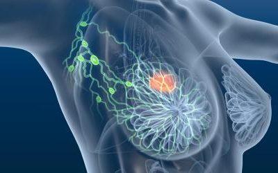 Cancer du sein : une radiothérapie en 1 minute au lieu de 6 semaines.