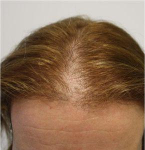 Alopécie femme