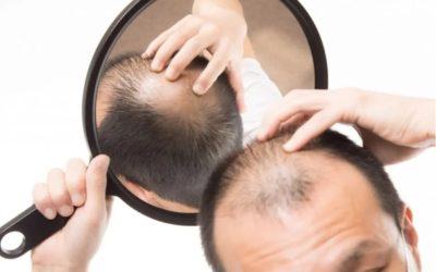 La perte de cheveux