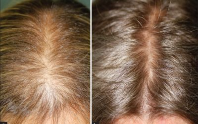Traitement de l'alopécie