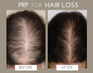prp before/after
